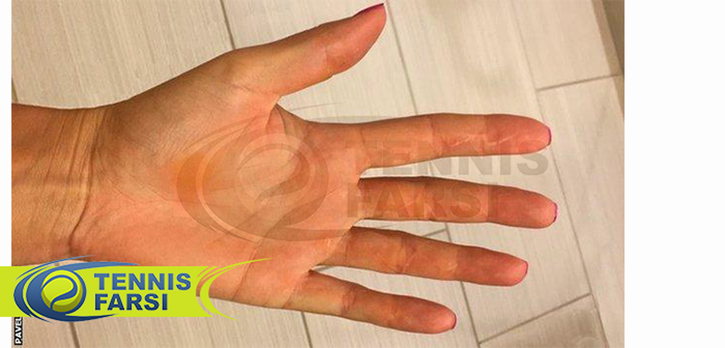 دست پترا بعداز جراحی